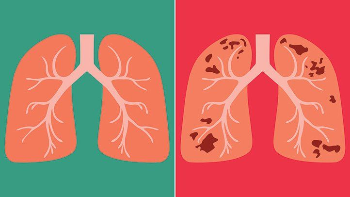 Tuberculosis: Deadly infectious but curable disease