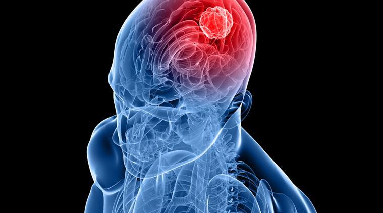 combinationofdrugsmayhelpcurebraincancer