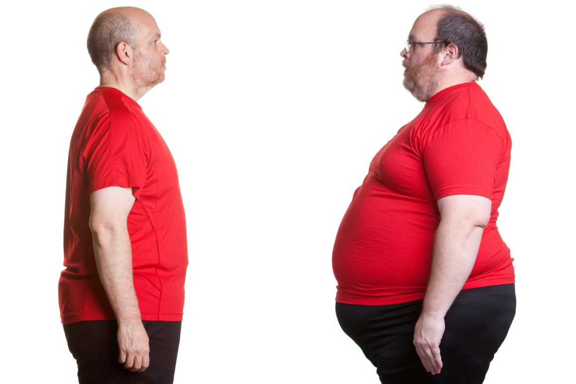 Obesity can cause brain damage: Study
