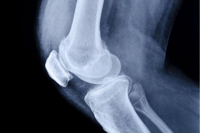 3dprintingcouldhelpfixdamagedcartilage