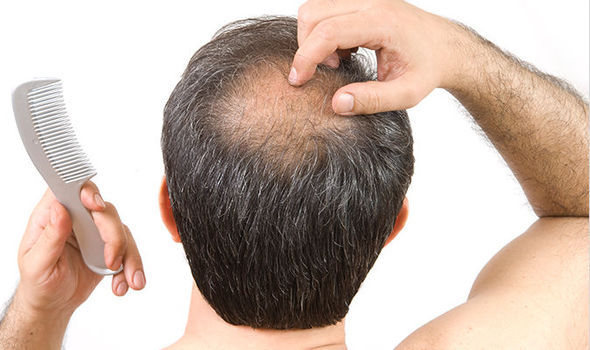 Novel drug may help treat hair loss:study