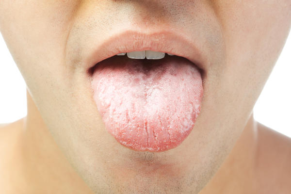 From turmeric to a healthy diet:  5 home remedies to get rid of white tongue