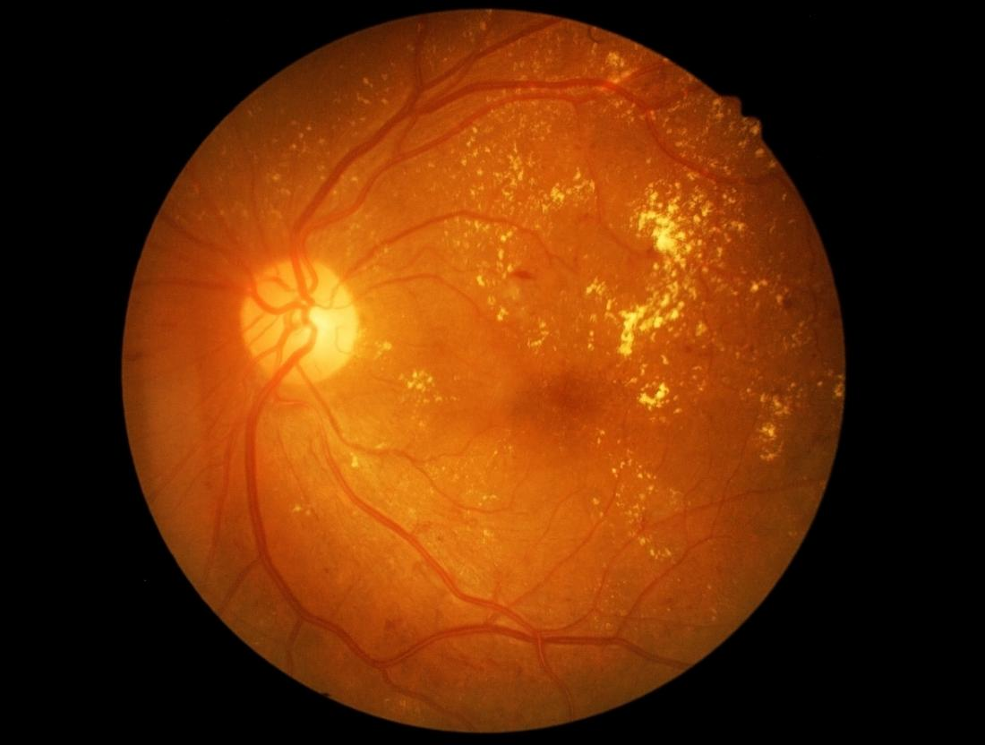 Ophthalmologists have found effective treatment for diabetic retinopathy: Research
