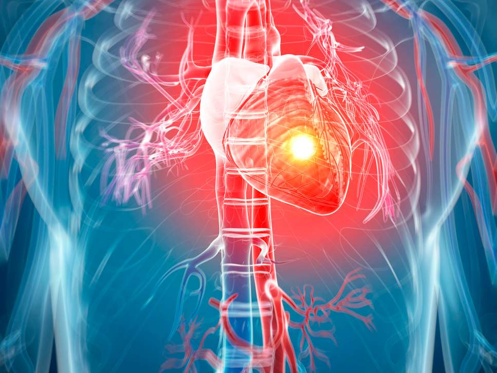heartattackriskalarminglyhighformiddleagedadultswithdepression:study
