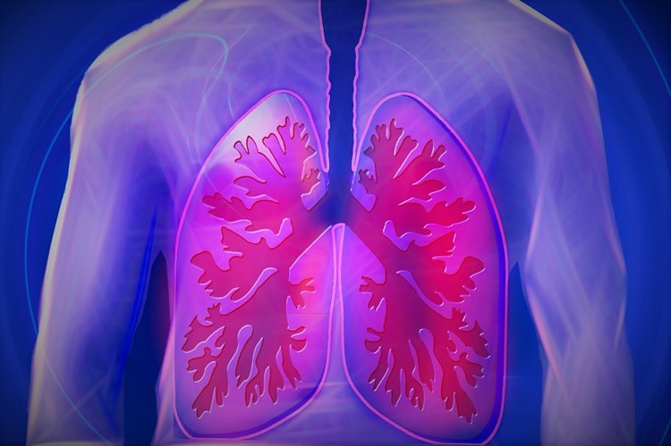Study finds link between lung disease and dementia