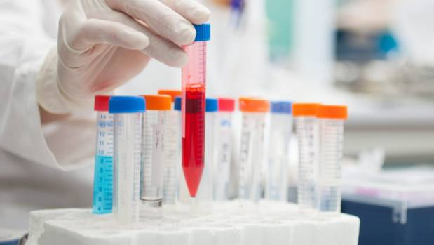 Scientists develop first blood test to detect Alzheimer