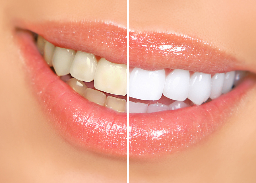 Five simple ways to naturally whiten your teeth