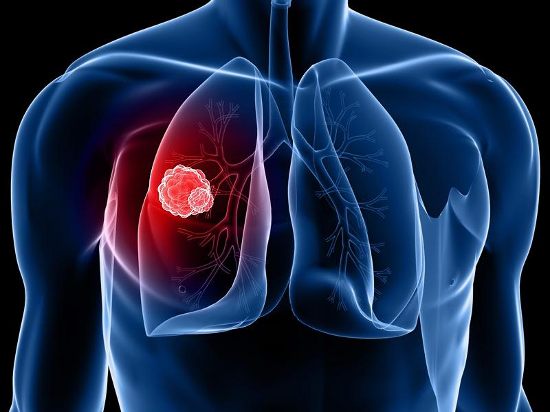 newproteinlinkedtocausinglungcanceridentified:study