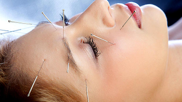 -acupuncture-a-safe-alternative-to-painkillers-in-emergency-departments