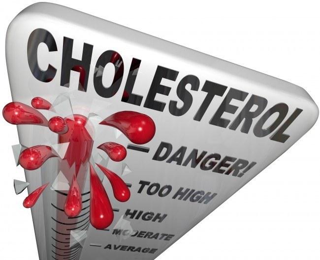 youngadultswithhighcholesterolmayneedstatins:study