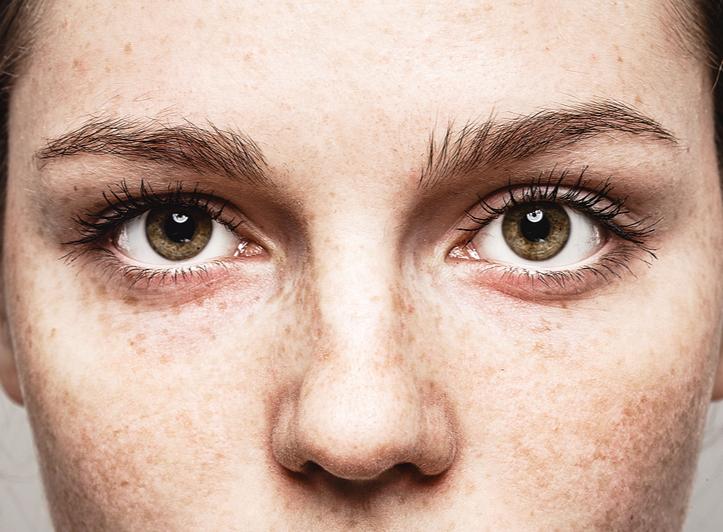 Bad eyesight links to risk of dementia : Study