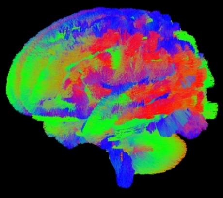 Scientists track brain developments of newborn babies