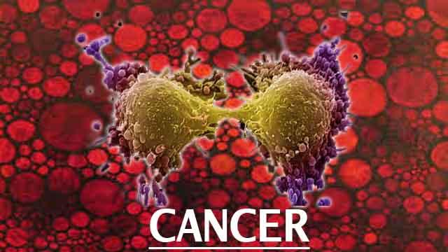 Nanotechnology to detect advance cancer