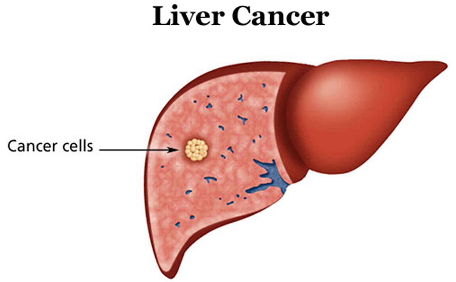 Severe fatty liver disease boosts risk for liver cancer: study