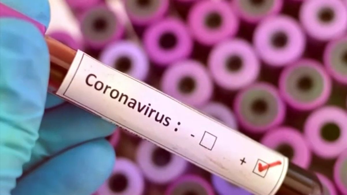 132 persons confirmed as new Coronavirus cases in Manipur