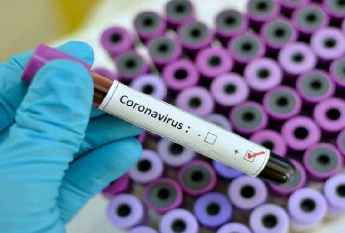 672 new Coronavirus cases detected in UAE