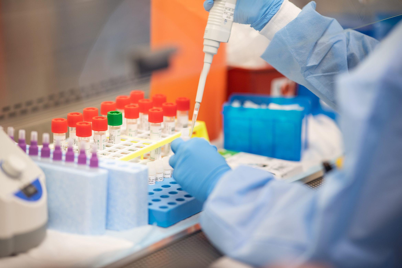 29privatelabchainsapprovedfortestingofcoronavirus