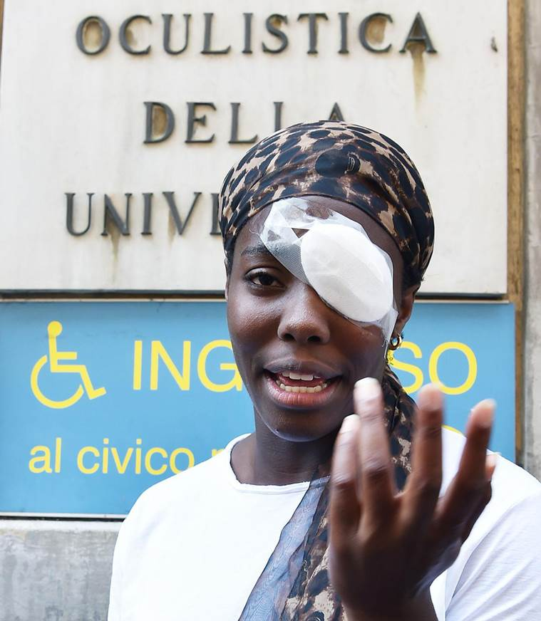 Black athlete's injury among cases probed for racism in Italy