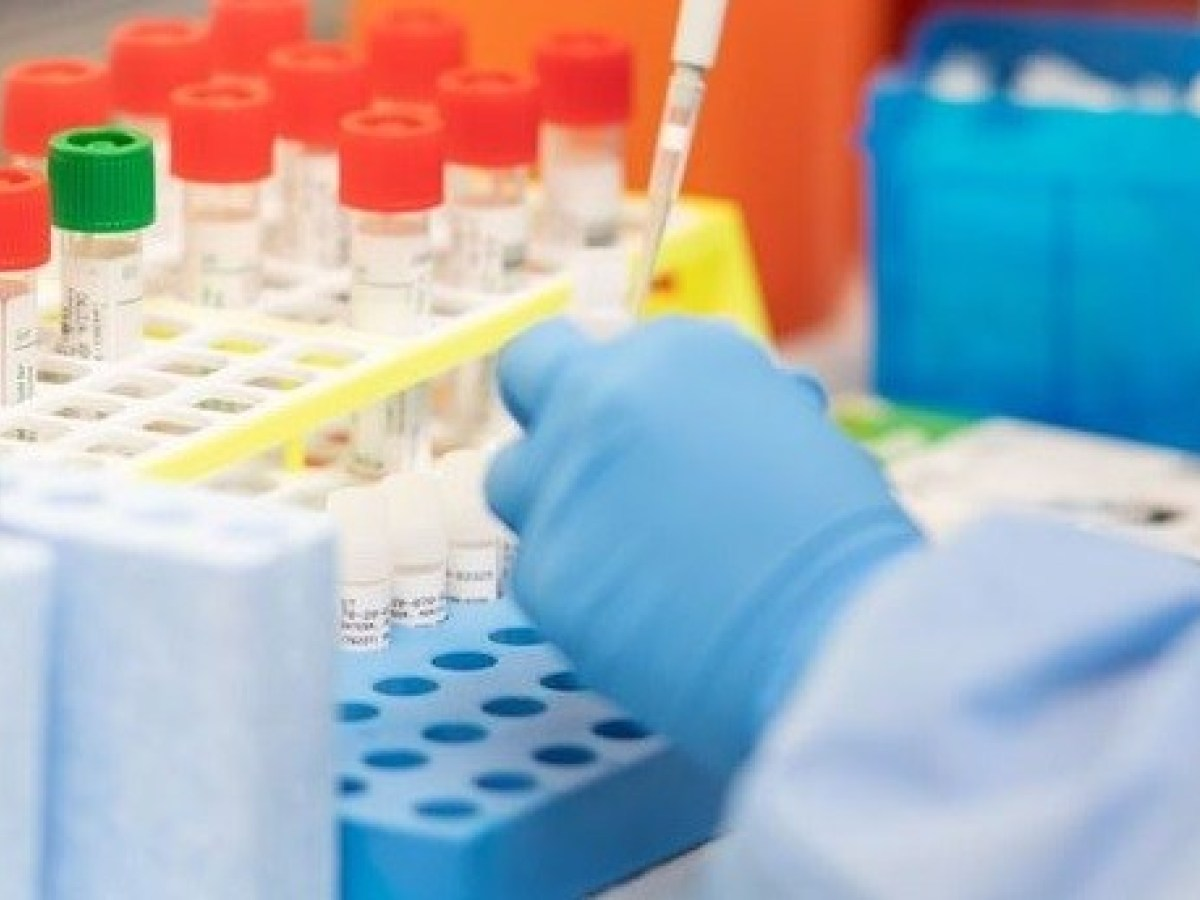 ICMR approves 8 private labs in Hyderabad