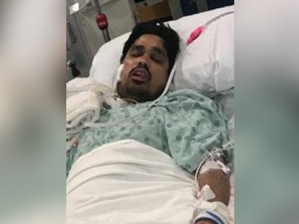 30-yr-old Hyderabadi student shot at in Chicago