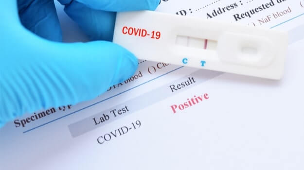 India conducting 18-20 lakh COVID-19 tests every single day: ICMR