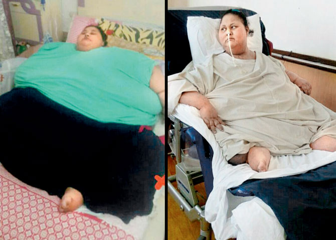 Eman Ahmed Discharged From Hospital, Leaves Mumbai For Abu Dhabi