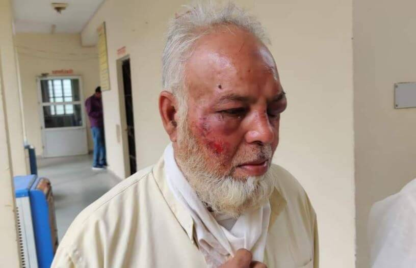 "Muslim auto driver brutally beaten after refusing to raise slogans of ""Modi Zindabad"" and ""Jai Shri Ram"" in Rajasthan"