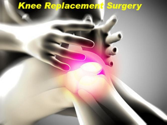 centre-reduces-knee-implant-rates-to-encourage-better-and-healthier-life