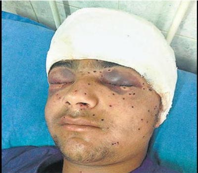 Police pellets blind Kashmir teen